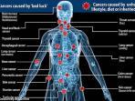 ilustrasi-sakit-kanker-bad-luck.jpg