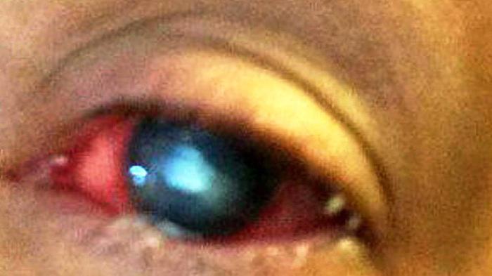 TIPS SEHAT, Sudah Diobati, Mata Tetap Merah, Ceks 4 Penyebab, Ini Cara Mengatasinya