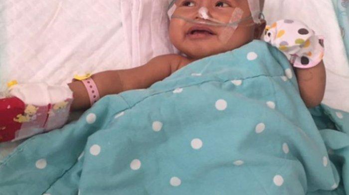 Bayi Karawang Sakit Atresia Bilier, Butuh Rp 2 M untuk Operasi. Ayahnya Bingung, Penyakit Apa Itu?