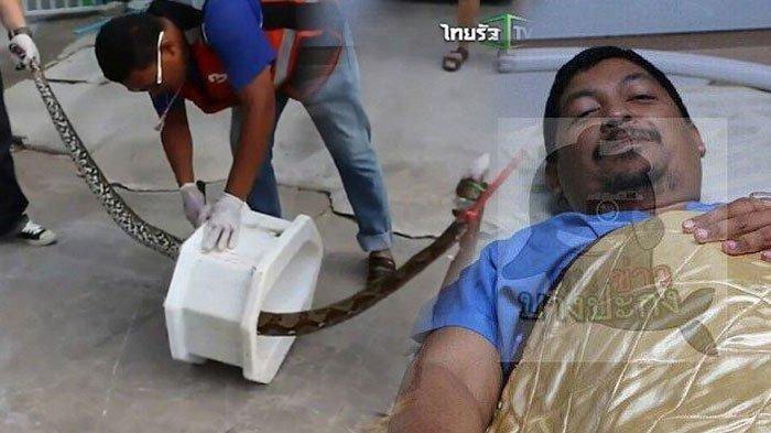 Kemaluan Pria ini digigit Ular Piton Saat BAB Hingga Berdarah-darah, Lihat Kondisinya Sekarang