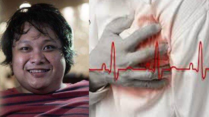 Bombom Cecep Reza Meninggal karena Penyakit Jantung, Berikut 8 Gejalanya yang Harus Diwaspadai