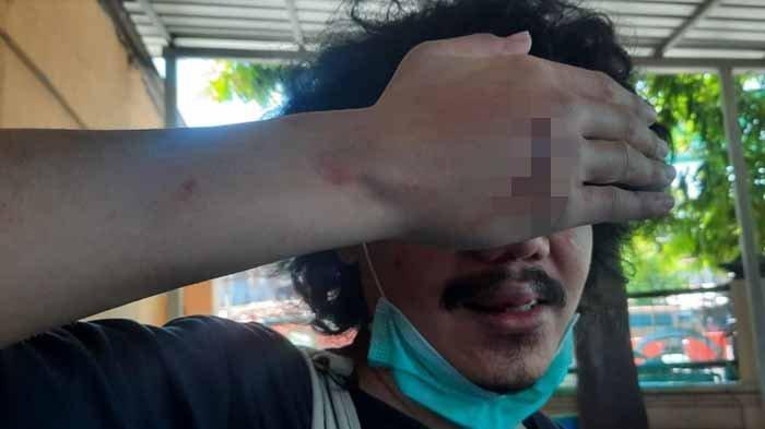 Kronologi Editor Detik.com di Surabaya Digebuki dan Ditabrak 2 Pria Tak Dikenal Saat Cari Makan