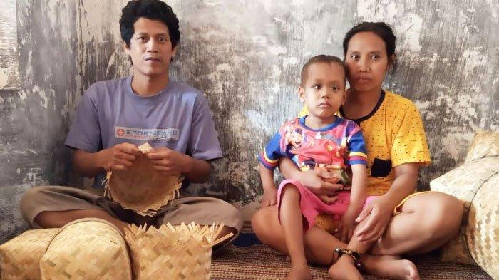 Bocah 5 Tahun di Kediri Derita Kanker Mata, Setiap 2 Minggu Kemoterapi di RSUD Dr Soetomo Surabaya