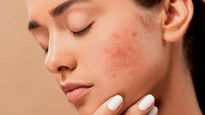 Make Up untuk Wajah Berjerawat, Mengandung Dua Vitamin Ini dan Ekstrak Buah