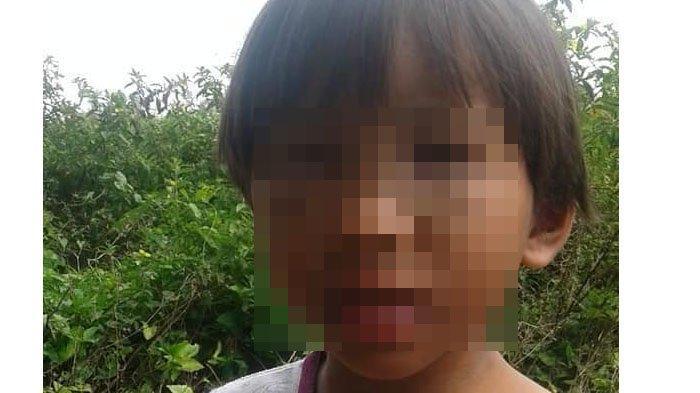 Gadis 9 Tahun Dapat Bogem Mentah dari Ayah sampai Kondisinya Miris, Polisi Ungkap Pemicunya Sepele