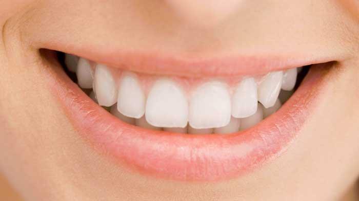 Soda untuk Hilangkan Karang Gigi? Begini Penjelasan Dr Remita Adya Prasetyo drg Sp PM