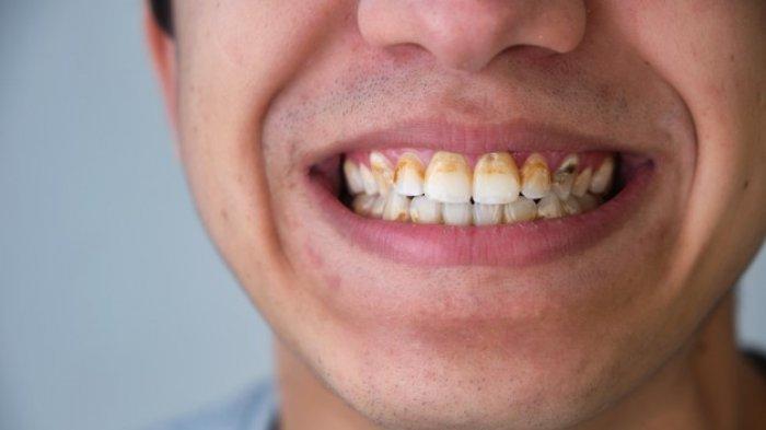 LIFEPACK: Cara Mencegah Gigi Busuk Bagi Penderita Diabetes, Beserta Gejalanya & Faktor Risiko