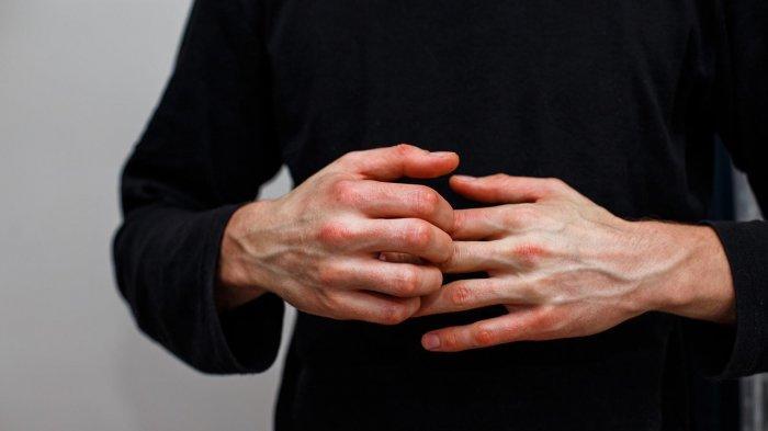 Lifepack: Apa itu Psoriasis? Kenali Gejala dan Efek Sampingnya Bagi Tubuh