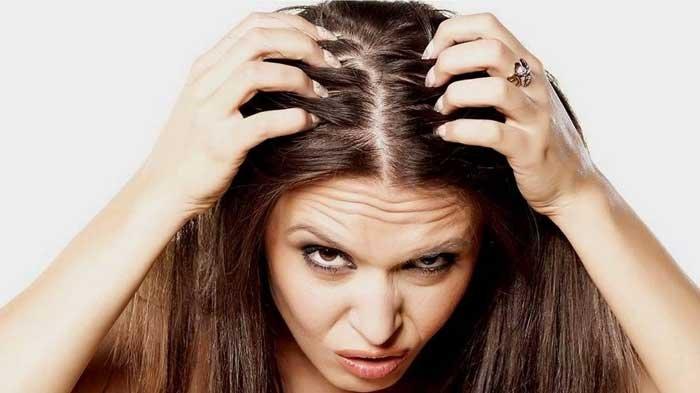 5 Bahan Ini Terbukti Bisa Atasi Rambut Berminyak, Mudah Dicari dan Murah  Meriah! - Surya