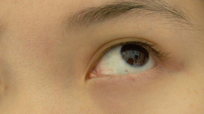 Tips Cegah Mata Minus pada Anak di Masa Pandemi, Cara Mudah dari Ahli Amerika, David Epley