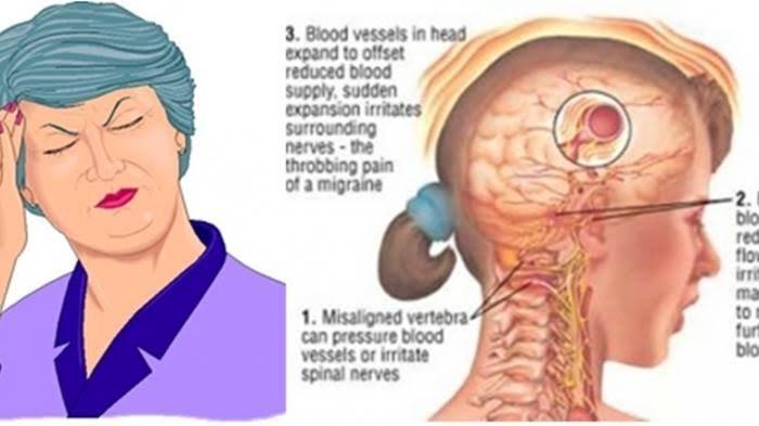 Delapan Jenis Sakit Kepala Terus Menerus Alodokter