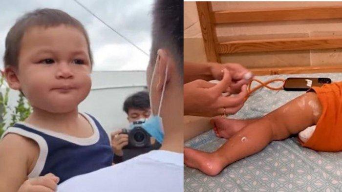 Kiano Anak Baim Wong Idap Flu Singapura, Paula Verhoeven Cemas Sekujur Tubuh Anaknya Luka Berair