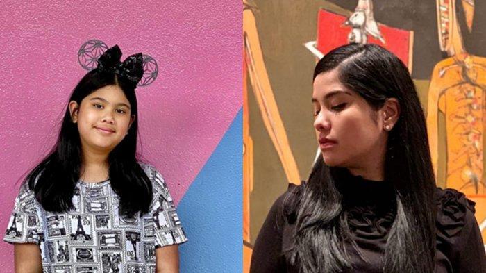 Kondisi Terkini Cucu SBY setelah Kaki Digips dan Jalan Pakai Tongkat, Annisa Pohan Minta Doa