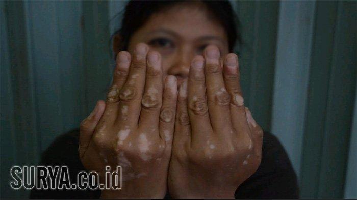 Inilah Cerita Dari Mantan Pekerja Seks di Surabaya yang Kini Berjuang Melawan HIV