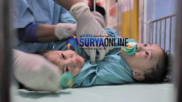 Galeri Foto Operasi Pemisahan Bayi Kembar Siam Aqila dan Azila di RSUD Dr Soetomo Surabaya