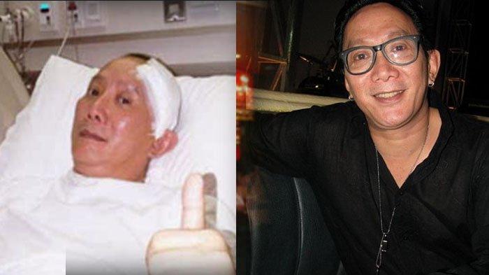Ingat Robby Tumewu 'Lenong Rumpi'? Begini Kabarnya usai Operasi Membuat Lubang di Tenggorokan