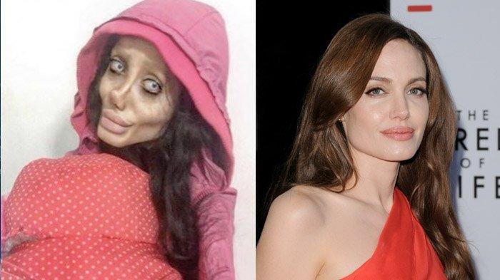 Kabar Terbaru Sahar Tabar, Fans Berat Angelina Jolie yang Lakukan Operasi Plastik Sebanyak 50 Kali