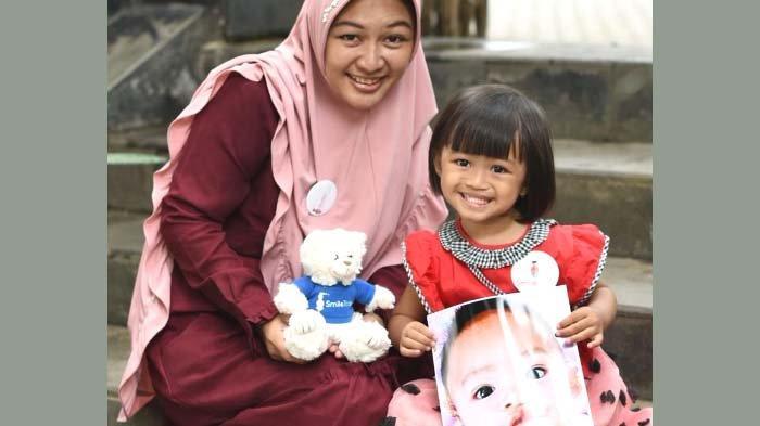 Smile Train Indonesia Suarakan Pentingnya Dukungan bagi Kesehatan Mental Anak dengan Bibir Sumbing