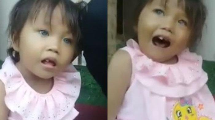 Viral, Amelia Bocah Bandung Punya Mata Unik, Bisa Berubah Warna: Siang Kebiruan, Malam jadi Hitam
