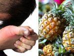 cara-mengobati-asam-urat-pakai-ramuan-herbal-berbahan-dasar-nanas-madu-simak-langkah-langkahnya.jpg