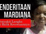 mardiana-asal-sumbawa-tiga-tahun-ini-menderita-penyakit-kulit-langka_20170330_194557.jpg