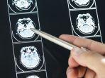 mengenal-cerebral-palsy-atau-lumpuh-otak-simak-gejala-penyebab-hingga-pengobatannya.jpg