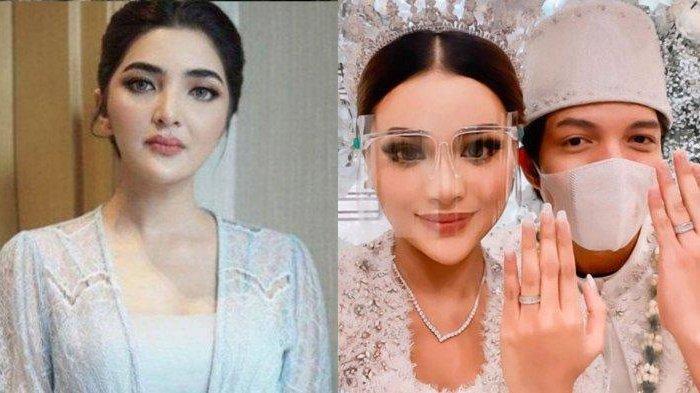 Ashanty Kaget Lihat Penampilan Berbeda Aurel Hermansyah Sejak Menikah, Rindu Sampai Harus Video Call