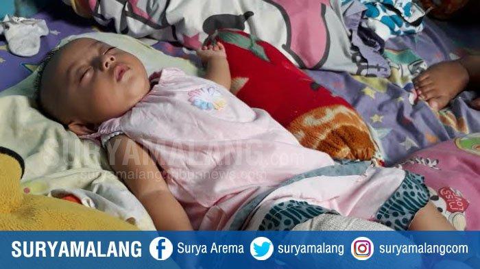 Kaki Bayi 6 Bulan di Bumiayu Malang Ini Harus Diamputasi Karena Penyakit Langka, Kesulitan Biaya