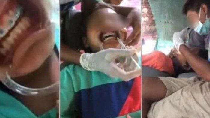 Astaga! Anak Ini Pasangkan Kawat Gigi Bak Dokter Gigi ke 2 Temannya,Videonya Ini Viral