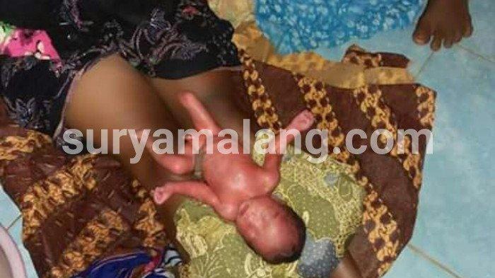Astaga! Ada Bayi Berkaki Cacat Menangis di Selokan Dekat Kuburan di Sumenep, Madura