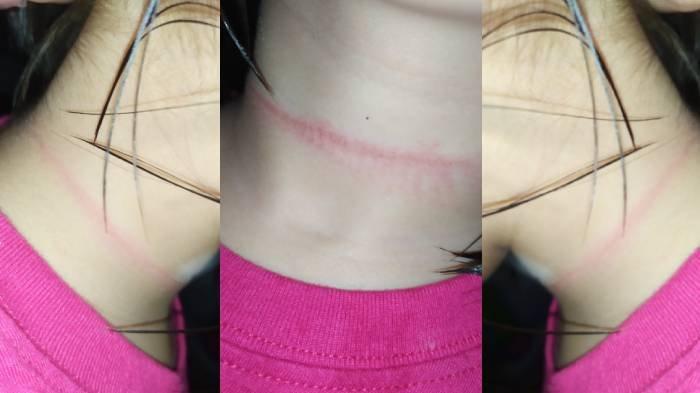 Bocah 4 Tahun Nyaris Mati Konyol Tiru Video Adegan Bunuh Diri TikTok yang Viral, Ibunya Syok