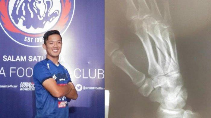 Takafumi Akahoshi Jadi Tumbal Laga Terakhir Arema FC di Liga 1 2019