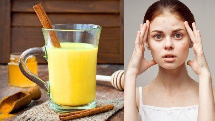 Daftar 10 Manfaat Jamu Temulawak Jadi Obat Herbal, Ampuh Atasi Asam Urat hingga Basmi Jerawat