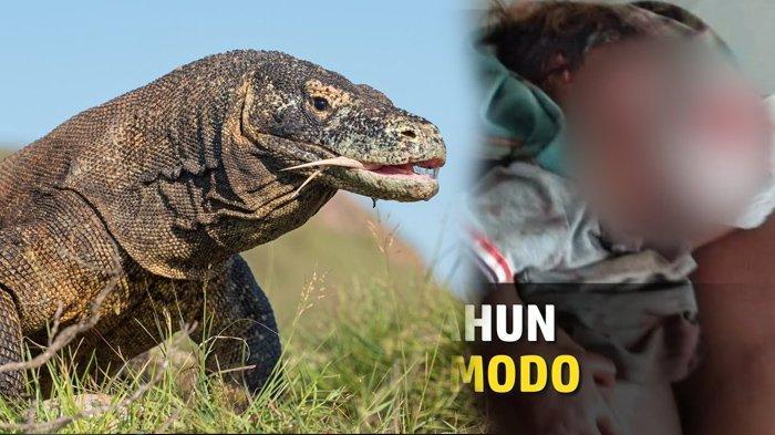 Detik-detik Bocah 4 Tahun Digigit Komodo Hingga Pergelangan Tangan Putus, Terjadi Saat Main di Teras