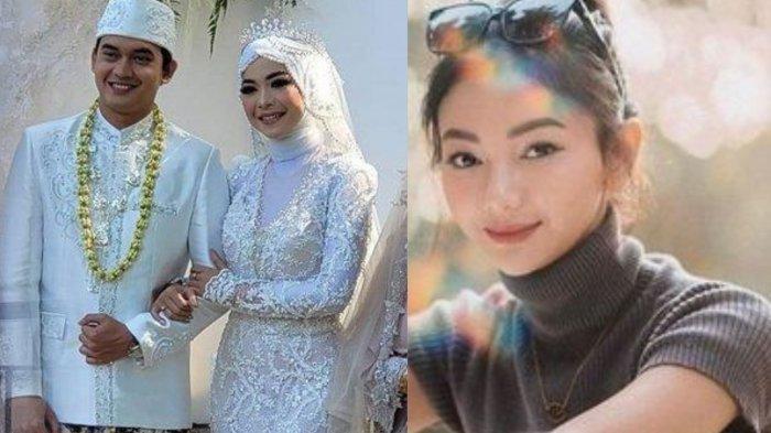 Fakta Novia Giana Istri Ikbal Fauzi, Pesona Dokter Muda Tak Kalah Cantik dari Elsa Ikatan Cinta