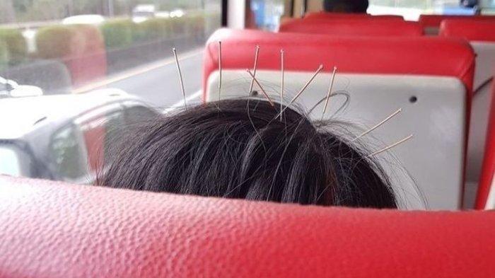 Foto Kepala Wanita Ditusuk Sembilan Jarum Saat Naik Bus Viral di Facebook, Bikin Orang Lain Ngeri