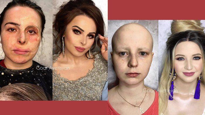 The Power of Makeup! Perias ini Sulap Pasien Kanker hingga Korban Kebakaran Jadi 'Aktris Hollywood'