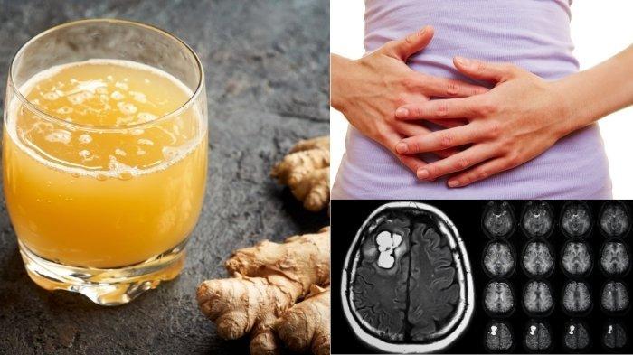7 Manfaat Temulawak untuk Penyakit Ringan sampai Kronis seperti Tumor, Liver dan Gangguan Pencernaan