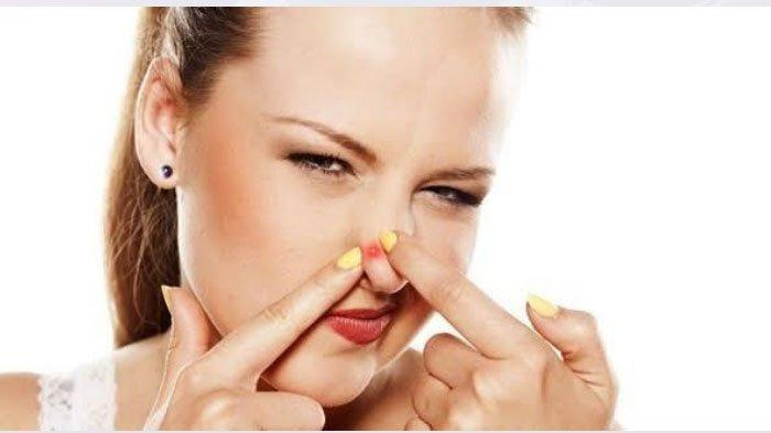 Fakta Seputar Jerawat, Awas! Jangan Pencet Jerawat di Sayap Hidung