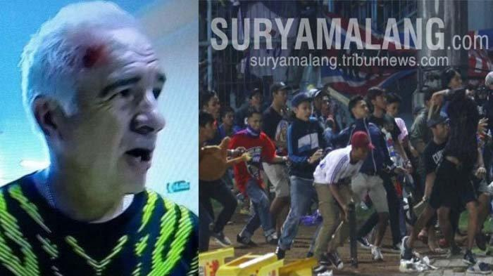 Mario Gomez Sudah Melupakan Dosa-dosa Aremania, Terkait Insiden Kepala Bocor di Stadion Kanjuruhan