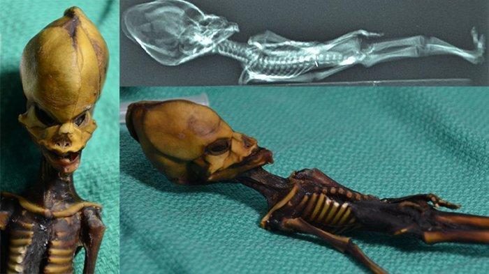 Ilmuwan Ungkap Kisah Pilu di Balik Kerangka Mirip Alien