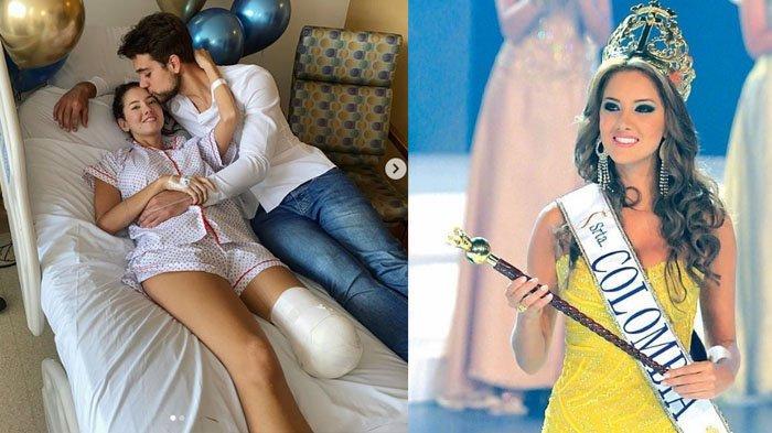 Kesetiaan Pacar Daniella Alvarez Miss Universe Colombia Setelah Jalani Amputasi, Selalu Mendampingi