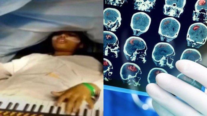 Tanpa Dibius, Video Gadis 9 Tahun Main Piano & Game saat Operasi Tumor Viral, Ini Penjelasan Dokter