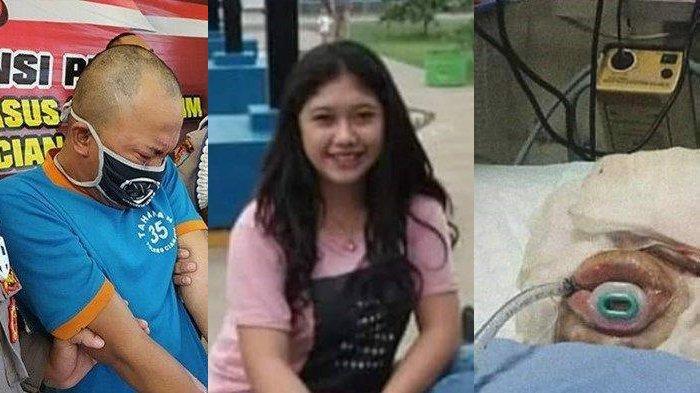 Kisah Indah Daniarti Gadis Dibakar Pacar Hidup-hidup Akhirnya Meninggal, Tepat Saat Pelaku Ditangkap