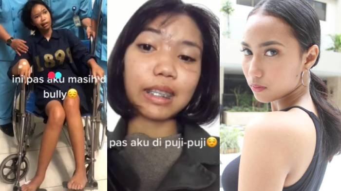 Viral Dulu Dibully, Wajahnya Hancur Akibat Kecelakaan, Kini Menjelma Jadi Model, Gak Nyangka!