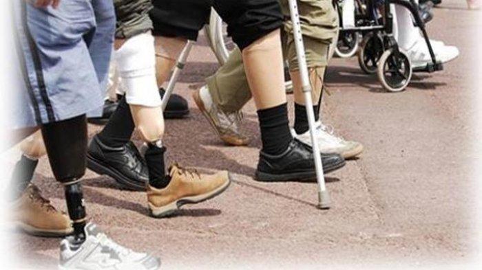 Kisah Kakek Terancam Kehilangan 2 Kakinya, Gara-gara Tim Dokter Bedah Salah Amputasi Kaki Pasien
