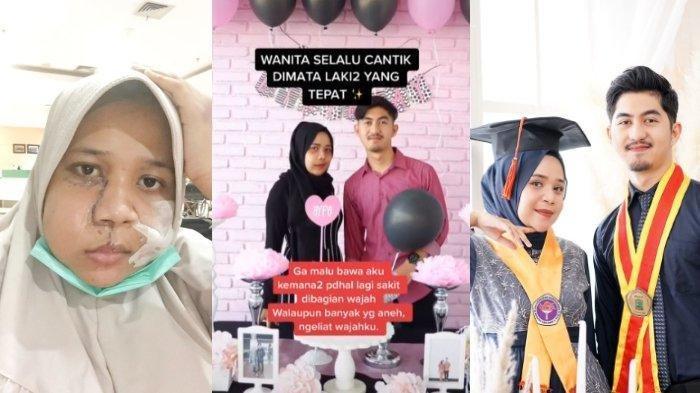 Kisah Viral di Padang, Cowok Ini Setia Dampingi Kekasih yang Idap Tumor di Wajah