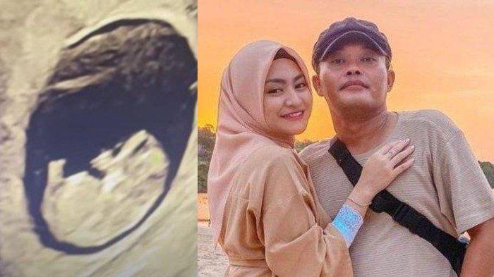 Kondisi Janin Nathalie Holscher Setelah Diperiksa Dokter Kandungan, Istri Sule Coba Tenang & Optimis