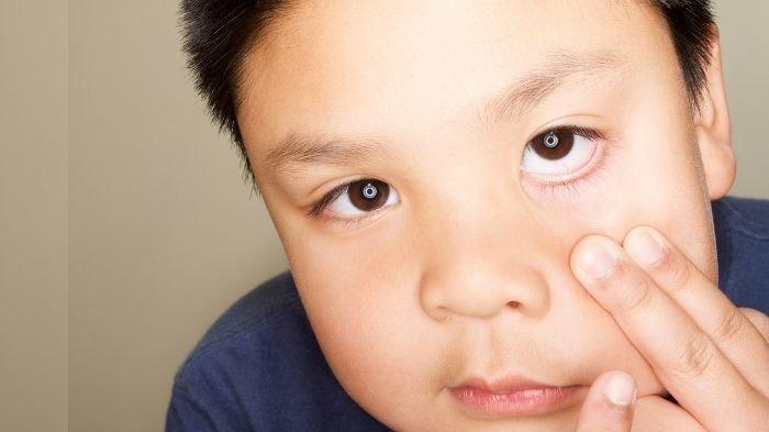 Kondisi Mata Merah Covid-19 Saat Isolasi Mandiri Sering Terjadi Pada Anak-anak, Simak Gejalanya