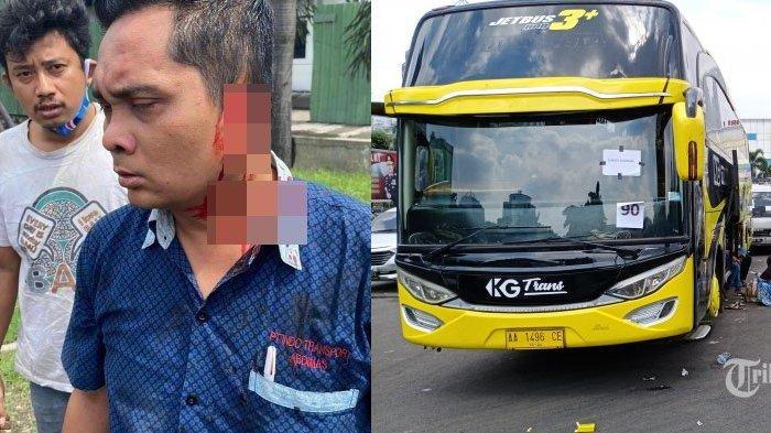 Kronologi Telinga Kondektur Bus Bersimbah Darah di Jalanan, Digigit Pengendara Motor Hingga Putus
